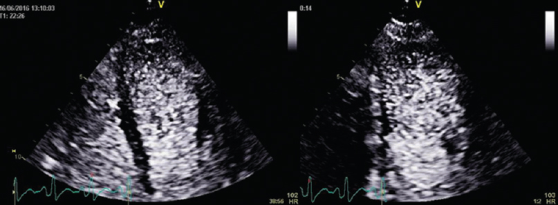 Figure 16: Swirling artifact due to too little or too slow contrast administration