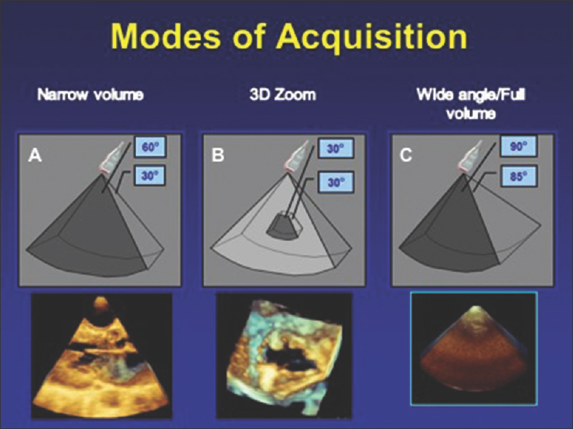 Figure 4: The three different modes of acquisition utilizing three-dimensional echocardiography. (a) Narrow volume (b) 3D Zoom (c) Wide angle/Full volume
