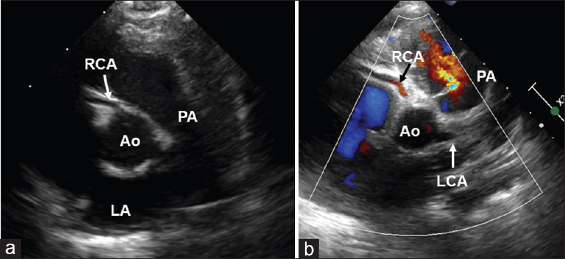 Figure 2: Parasternal short-axis view showing the origin of the right coronary artery from the right sinus (arrow) is seen on two-dimensional (a) and color flow mapping (b). PA: Pulmonary artery, Ao: Aorta, LCA: Left coronary artery, Cx: Circumflex coronary artery, LAD: Left anterior descending artery, RCA: Right coronary artery
